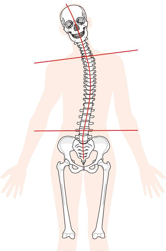 筋肉の炎症